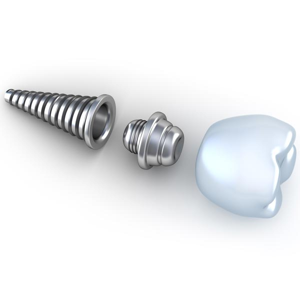 moorpark ca implants