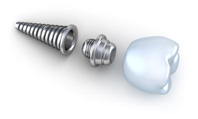 dental implants in moorpark ca