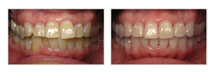 before & after of smile makeover